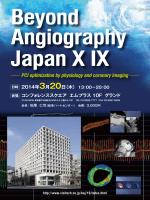 PCI optimization by physiology and coronary imaging
