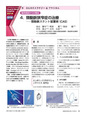 4. 頸動脈狭窄症の治療