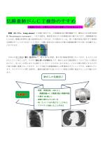 低線量肺がんCT検診のすすめ