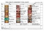 口腔アセスメントツールとしてのOHAT(oral health assessment tool)