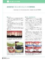 歯冠破折歯へのコンポジットレジン MI 審美修復