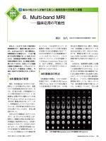 6.Multi-band MRI