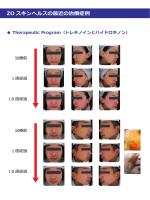 ZO スキンヘルスの最近の治療症例